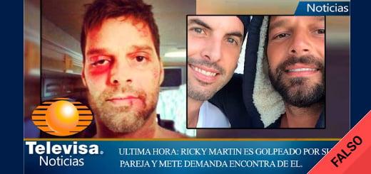 Es falso que Ricky Martin fue golpeado por su pareja