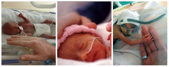 Son falsas las fotos referidas a la beba que nació luego de una cesárea a una nena de 12 años en Jujuy
