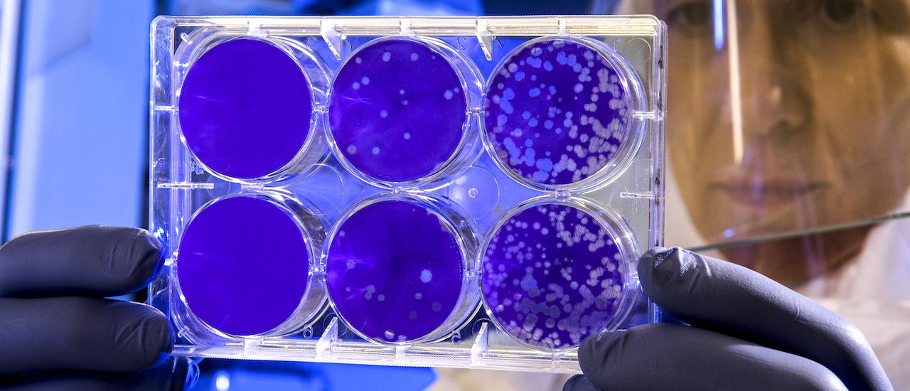 Qué es el R0, el número que siguen los científicos para ver la intensidad del coronavirus