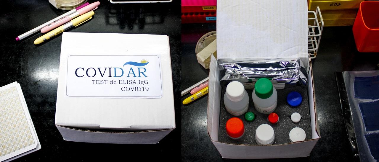 Coronavirus en la Argentina. Dónde y para qué se están usando los tests desarrollados en el país
